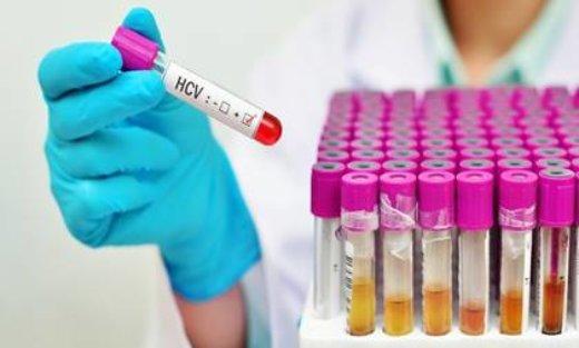 Laboratorium Szpitala Miejskiego w Świnoujściu zaprasza